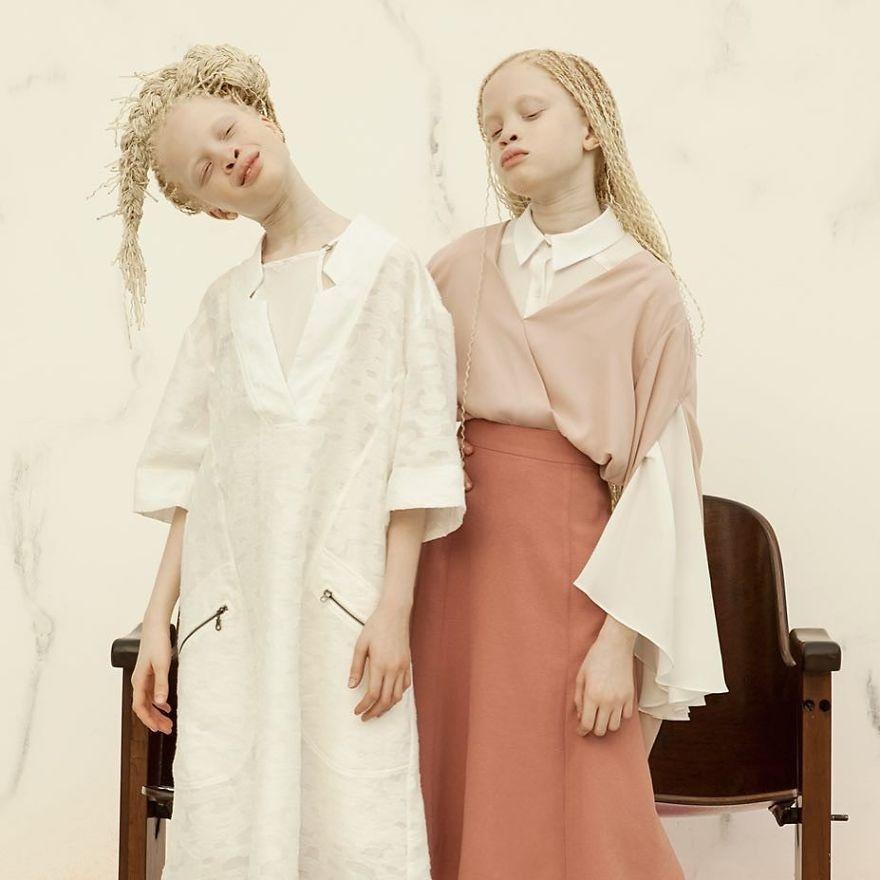 Двойняшки-альбиноски - 1