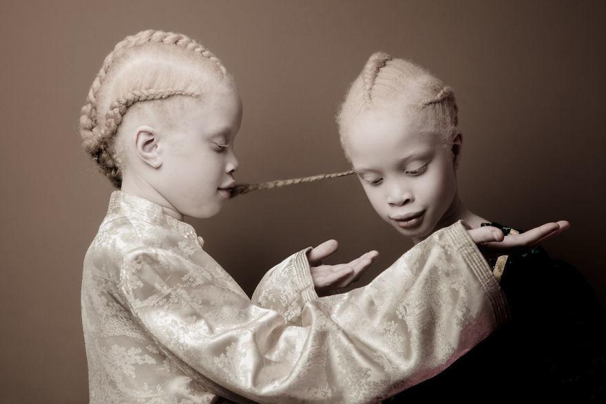 Двойняшки-альбиноски - 2