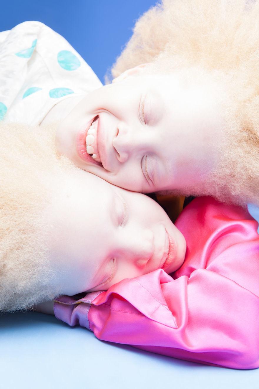 Двойняшки-альбиноски - 3