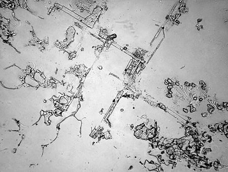Слезы под микроскопом - 3