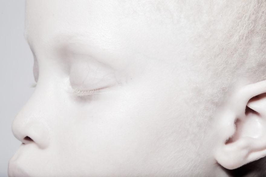 Двойняшки-альбиноски - 6