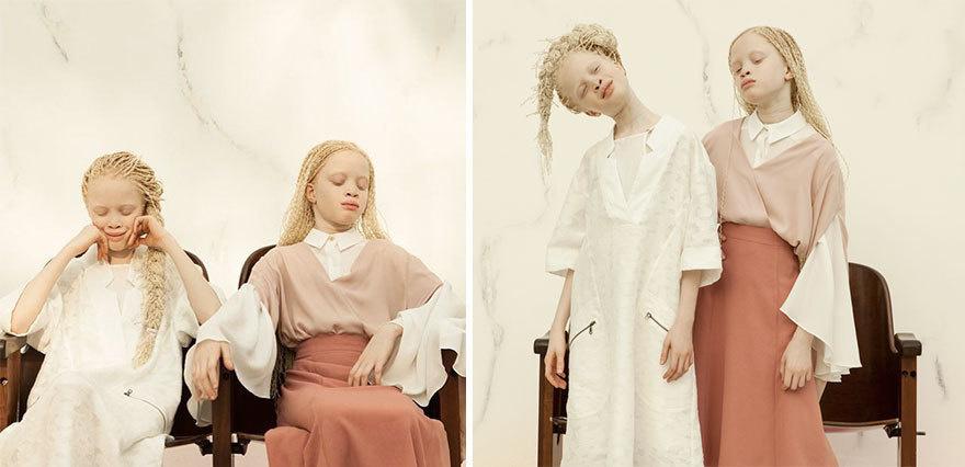 Двойняшки-альбиноски - 7