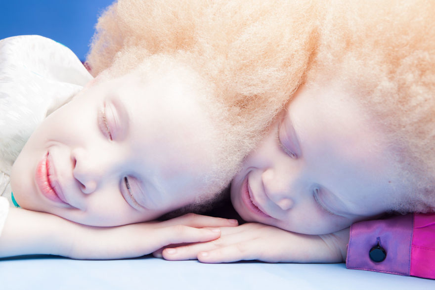 Двойняшки-альбиноски - 8
