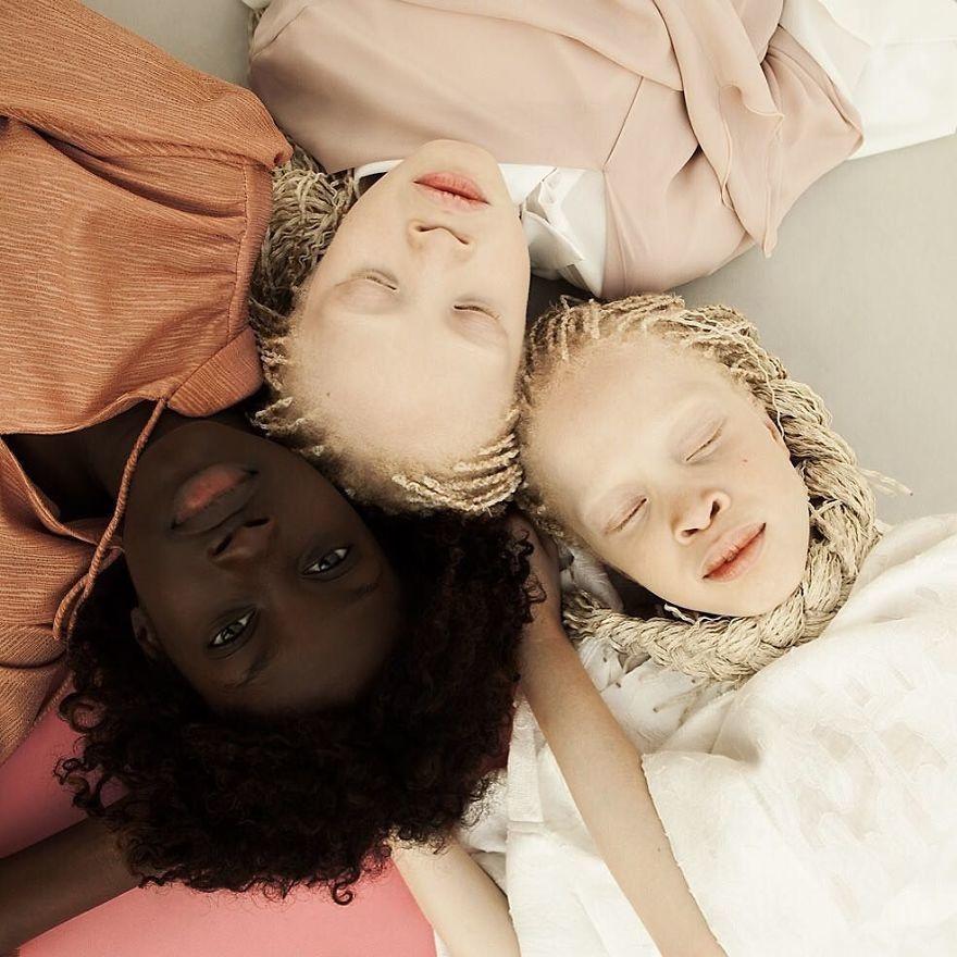 Двойняшки-альбиноски - 9