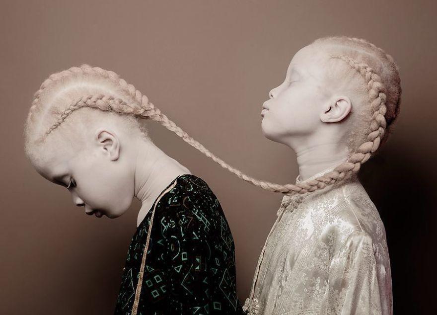 Двойняшки-альбиноски - 10