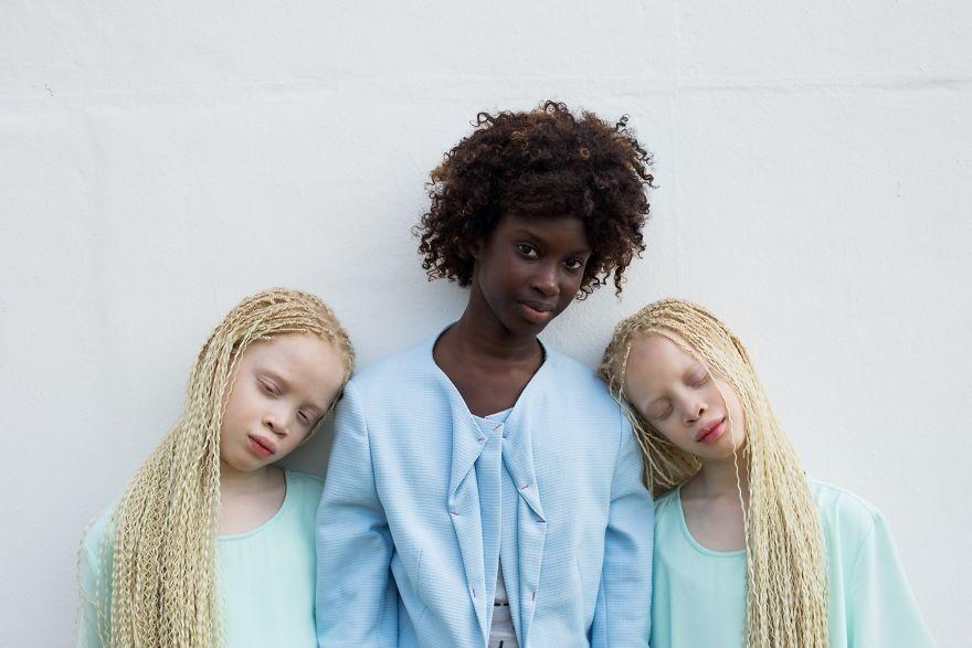 Двойняшки-альбиноски - 11
