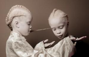 Двойняшки-альбиноски