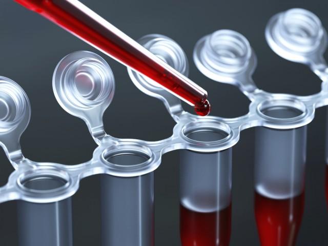 боли в суставах соэ 73 рак крови