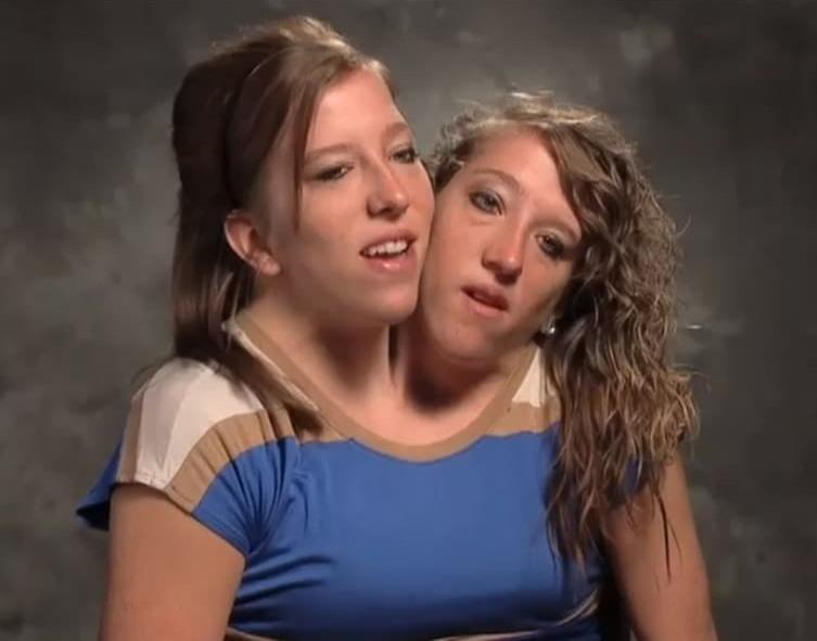 Сиамские близнецы - 5